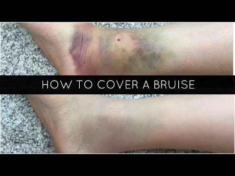 HOW TO COVER A BRUISE | MIKAELAABREE