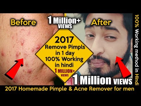 How to Remove Pimples in one day 100% working in Hindi | 2017 Homemade Pimple Remover For Men |