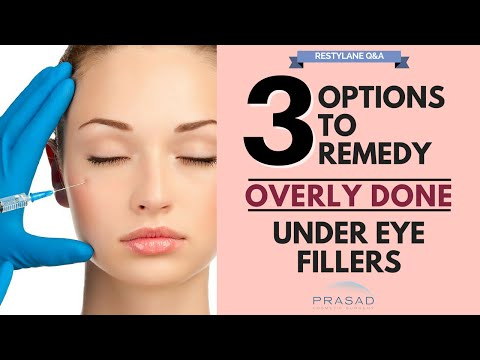 Options to Remove Excess Filler Placement, and Treatments to Improve Under Eye Area