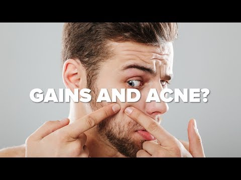 Weight Training Causes Acne? Gains and Zits, Gains and Zits...