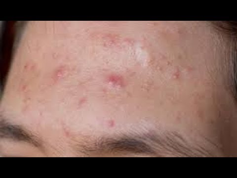 Acne Causes, Diagnosis and How to Get Rid of Acne