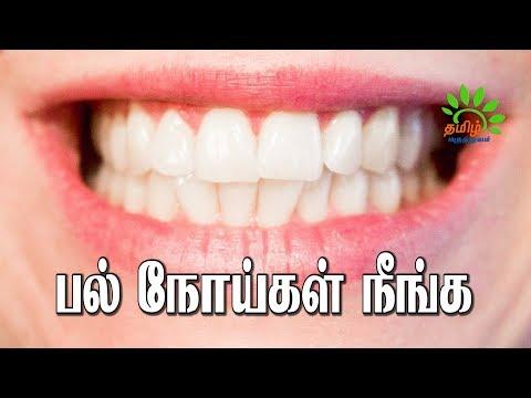 பல் நோய்கள் நீங்க வேண்டுமா இதை பயன்படுத்துங்கள். | Eeru veekam |Vai natram poga  Tamil Maruthuvam