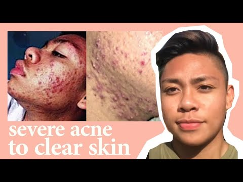 ACNE RUINED MY LIFE  / REAL TIPS  / ADVICE + STORYTIME / BANISHACNE
