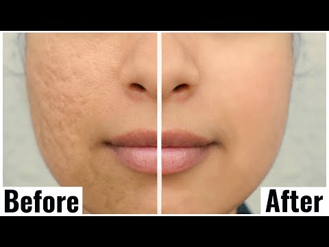 How to SHRINK Large Open Pores? Amazing Results |Anaysa