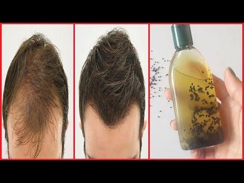 गंजे सिर पर फिर से बाल उगाने के लिए इस तरह बनाये कलौंजी तेल   Kalonji Oil For Hair Growth
