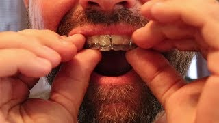 Download Smile Direct Club: Aligners Have Arrived! (Day 1) Video