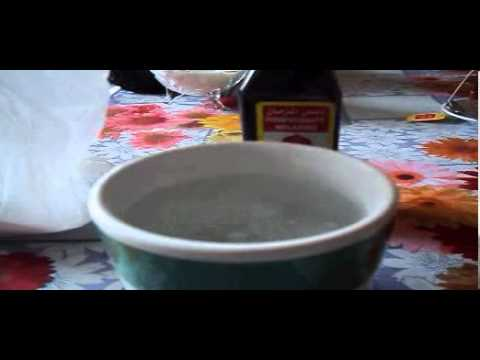 Baking Soda and Molasses Cancer Treatment/Prevention