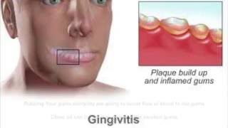 Home Remedies To Get Rid Of Gingivitishow To Get Rid Of Gingivitis