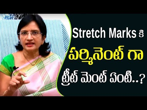 Get Rid of Stretch marks: Causes and Treatments l Doctor Advice l Hai TV
