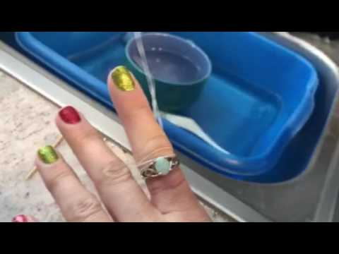 How to get a stuck ring off a swollen finger with dental floss! WORKS!
