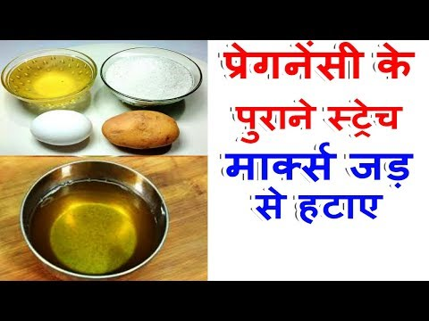 Stretch Marks Removal At Home In Hindi Homemade Remedies For Get Rid Of Stretch Marks