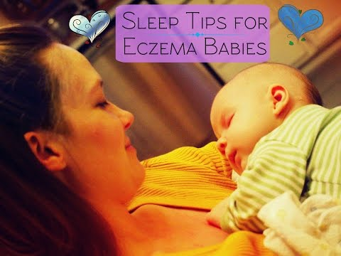 Sleep Tips for Eczema Babies & Babies Up to 2yrs