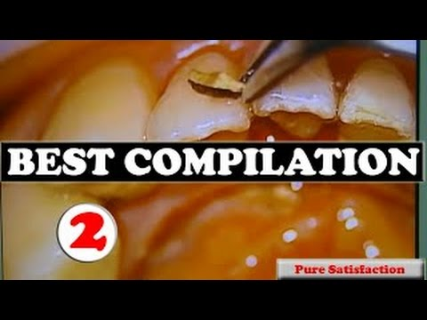 Compilation 2 – more best plaque removal, calcium extraction