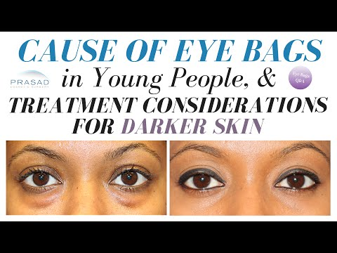 The Cause of Eye Bags in Young People, and Considerations for Dark Skin Lower Eyelid Surgery