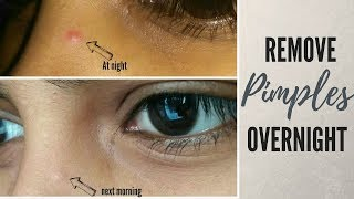 The BEST way to remove pimples overnight in Hindi (Naturally)   100% Effective