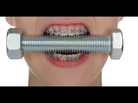 HOW TO CHOOSE THE COLOR OF YOUR BRACES 💪🌴⚽😻💊🔵🔴