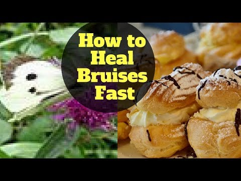 How to Heal Bruises Fast