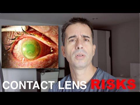 How Dangerous Are Contact Lenses? (& when to wear them anyway)