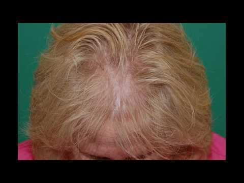 Know About Hair Growth Patterns