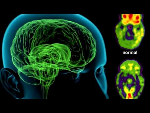 TREAT SCHIZOPHRENIA SUBLIMINAL EXTREMELY POWERFUL AND VERY FAST RESULTS
