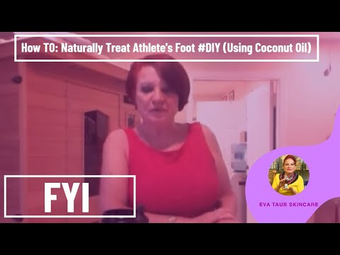 How to Naturally Treat Athlete's Foot #DIY (Using Coconut Oil)