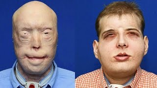 US Firefighter Gets A New Face Of Another Person After Surgery