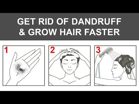 Get Rid of Dandruff and Make Your Hair Grow Faster With 1 Ingredient