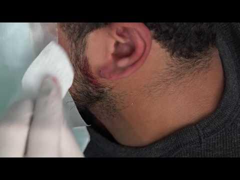 Penbrook's Ear Cyst Popping!  Best Ear Cysts