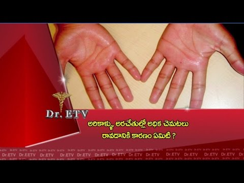 Dr.ETV - Reasons for sweating in palms and feet - 12th May 2016 - డాక్టర్ ఈటివీ