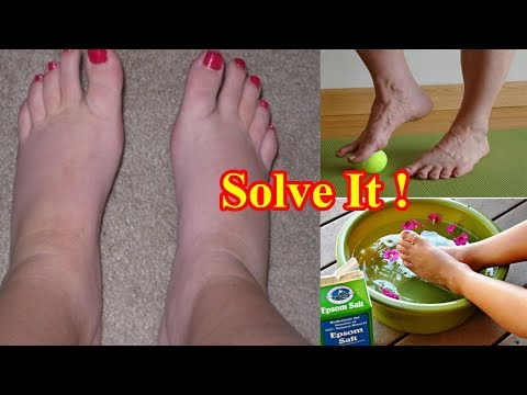 6 Natural Home Remedies For Swollen Feet And Ankles
