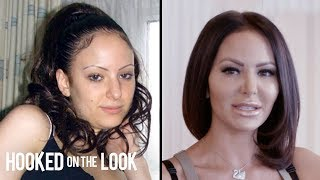 Plastic Surgery Addict Spends $130,000 To Look