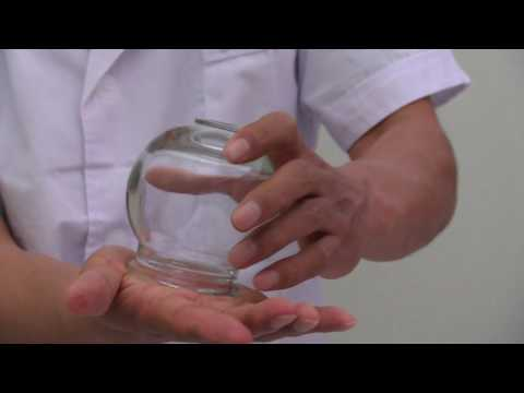 Chinese Glass Cupping Therapy - How to Create Suction Using Fire