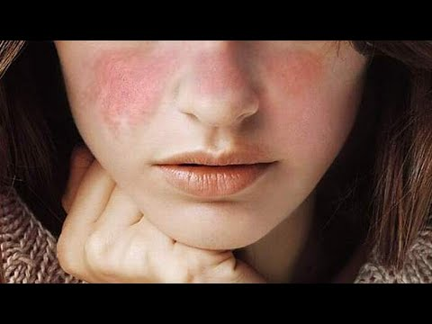What is Lupus - Symptoms, Treatments, Cuases, Preventions