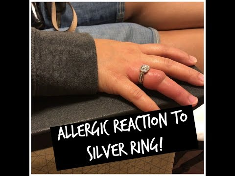 Ring stuck on finger! Emergency cut it! Hack didn't work! No to Zales ring on Sale