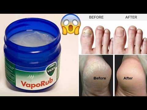 How to Use Vicks VapoRub For Cracked Heels, Belly Fat, Broken Nails , Eliminate Stretch Marks