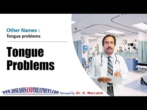 Tongue problems : Causes, Diagnosis, Symptoms, Treatment, Prognosis