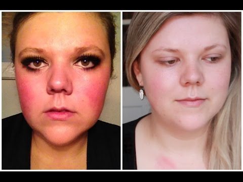 How I (Almost) Got Rid Of My Redness!