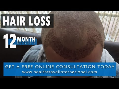 FUE Hair Transplant – New Hairline - 12 Month Result - Hair loss treatment / Receding Men 2018
