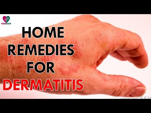 Home Remedies For Dermatitis - Health Sutra