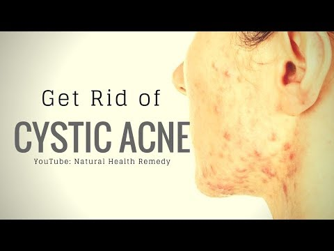 Cystic Acne Treatments 🌿 Natural Cystic Acne Removal