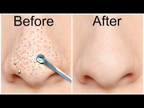 How to Remove Blackheads Naturally from nose and face at home