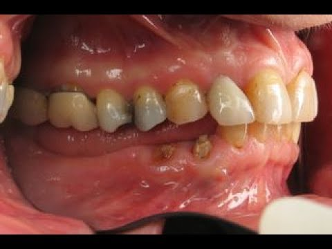 Remedy for Toothache | Kill Tooth Pain Nerve In 3 Seconds Permanently With This Tooth ache remedy