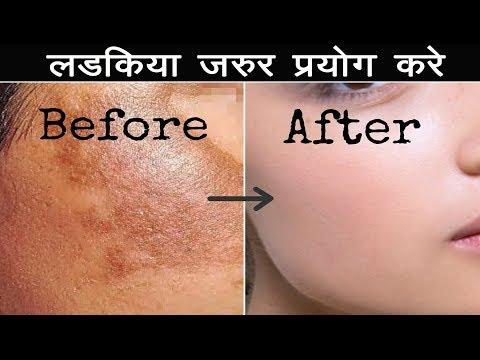 1 दिन में चेहरे के दाग धब्बे और झाइयां जड़ से ख़त्म करे, Remove Pimples acne & Dark Spots in 1Days