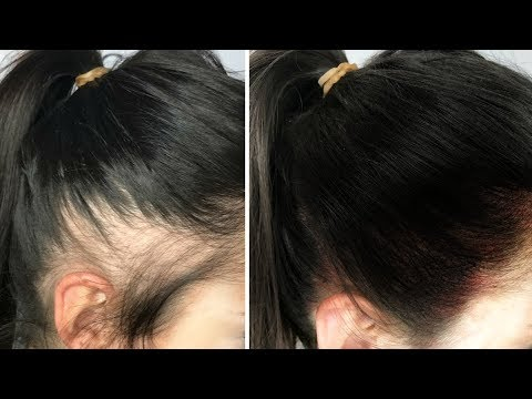 HAIR REGROWTH  World's Best Remedy for Hair Growth