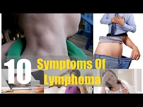 Top 10 Symptoms of Lymphoma Ignored by Men and Women Swollen Lymph Nodes Lymph Glands