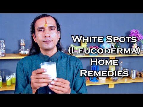Treat White Spots On Skin With Home Remedies by Sachin Goyal @ ekunji.com