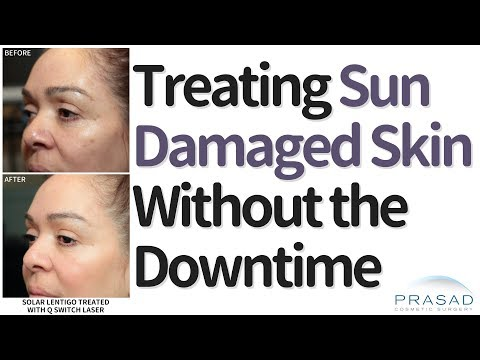 How to Treat Sun-Damaged Skin Like Dark Spots and Freckles, Without the Downtime