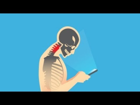 Text Neck - How to avoid neck pain and improve your posture