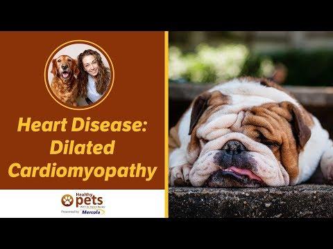 Heart Disease: Dilated Cardiomyopathy