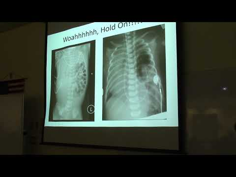 Neonatal Pneumonia Part 5